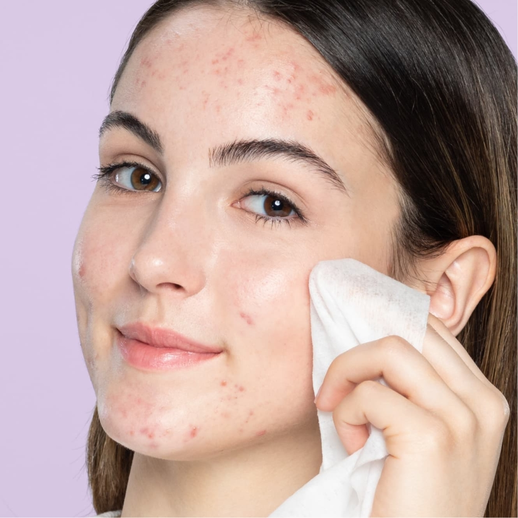 Young teen with brown eyes and brown hair with acne wipes cheek with lemon facial cleansing wipe in front of purple background