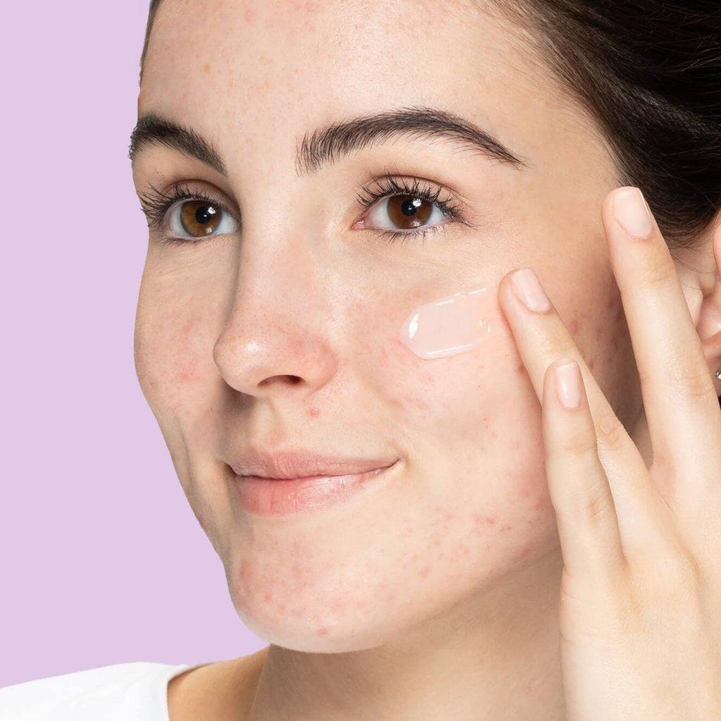 Teen applying layer of moisturizer on cheek