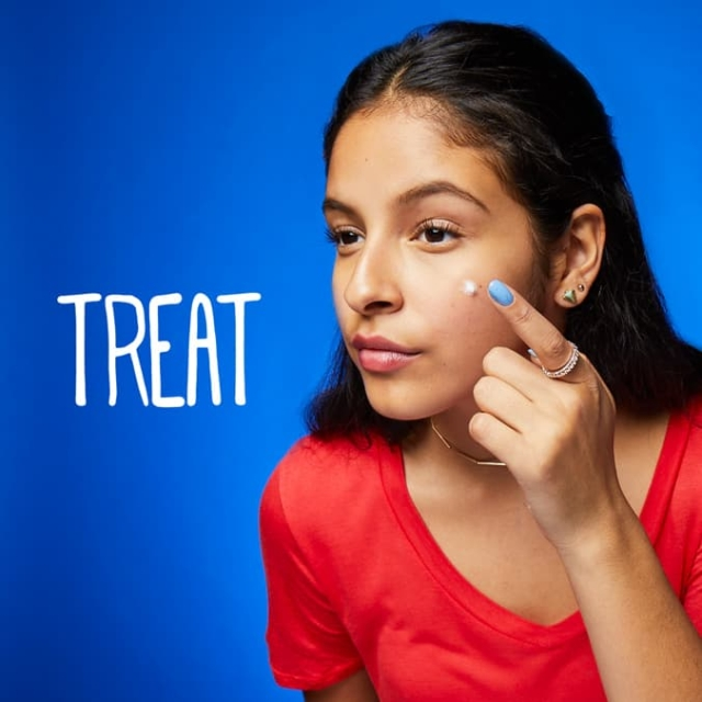 Treating acne with Clean and Clear